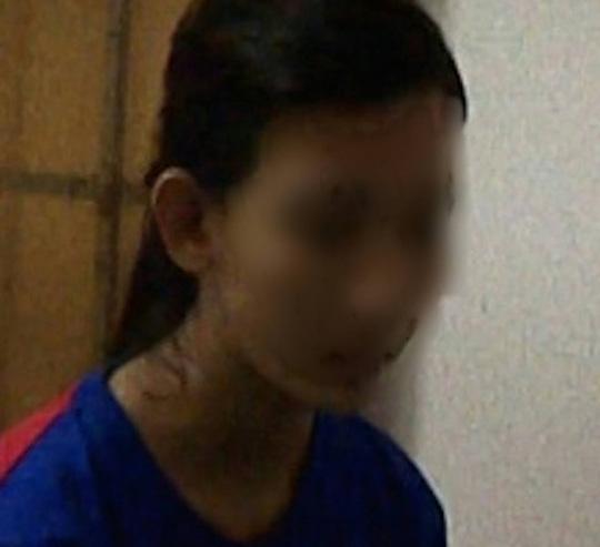 Thiếu nữ 15 tuổi dùng dao đâm bạn trọng thương vì mâu thuẫn trên Facebook 1