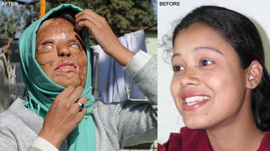 Video: Cô gái bị tạt axít giành giải thưởng 1 tỷ trong Ai là triệu phú 1