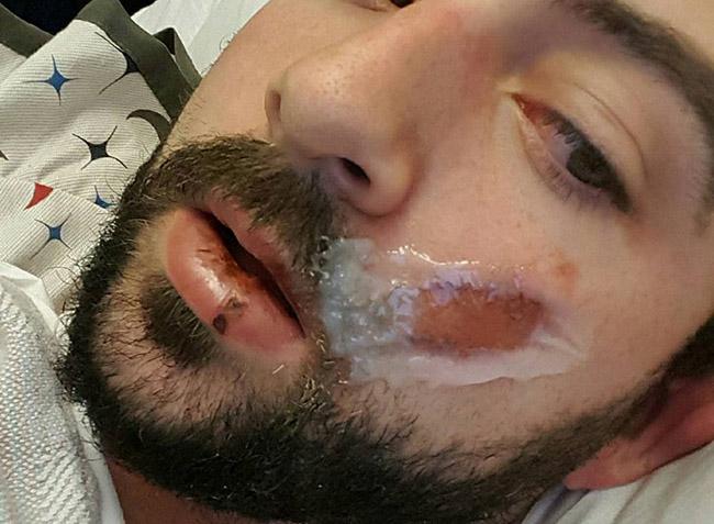 Thanh niên mất 7 chiếc răng vì thuốc lá điện tử phát nổ 1