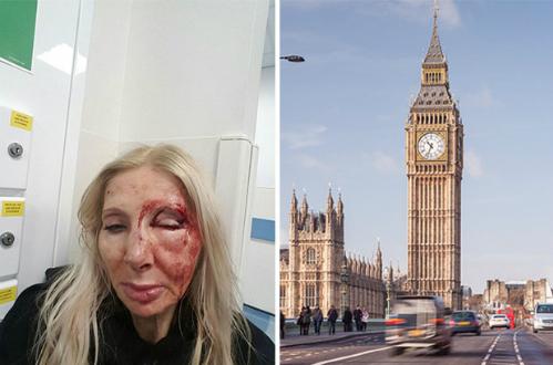 Hình ảnh Nữ du khách bị đánh vì từ chối nói chuyện với người lạ số 1