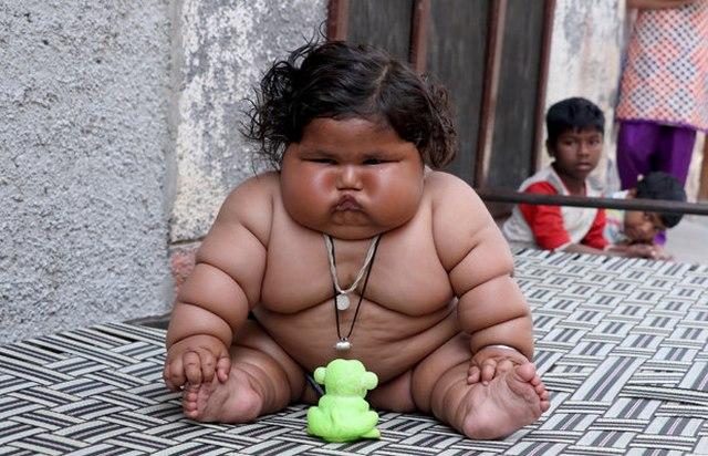 Bé gái nặng nhất thế giới, 8 tháng tuổi nặng 20 kg 1