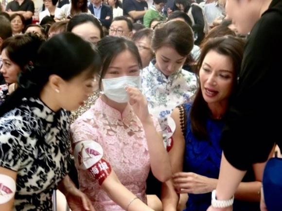 Hoa hậu châu Á bị hoại tử vì phẫu thuật thẩm mỹ 2