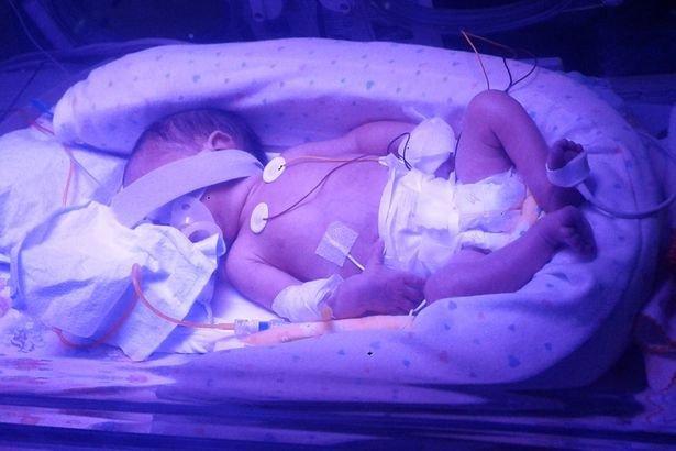 Hình ảnh Hy hữu mẹ chết gần 4 tháng vẫn sinh con khỏe mạnh số 1
