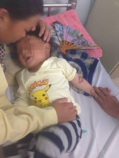 Bé 3 tuổi ăn nhầm gói hóa chất bị bỏng thực quản - dạ dày 1
