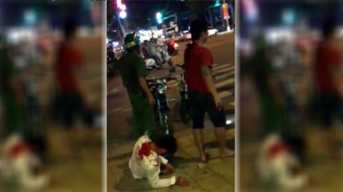 Hỗn chiến trong quán bar, 3 người bị thương 1