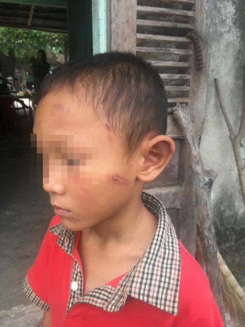 Phẫn nộ dì ruột bạo hành cháu trai 5 tuổi 1