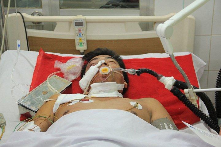 Tình hình các nạn nhân trong vụ TNGT 13 người chết ở Gia Lai 1