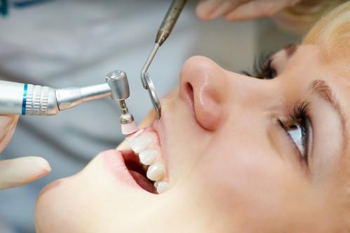 Những quan niệm sai lầm về chăm sóc răng miệng mà nhiều người vẫn mắc phải 1