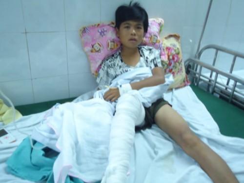 Nam sinh bị hổ vồ mất bắp chân ở Thanh Hóa 1