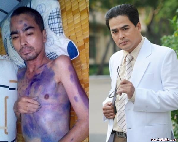 Diễn viên Nguyễn Hoàng: Ngày cuối cùng vẫn nằm chờ đợi để gặp con trai 2