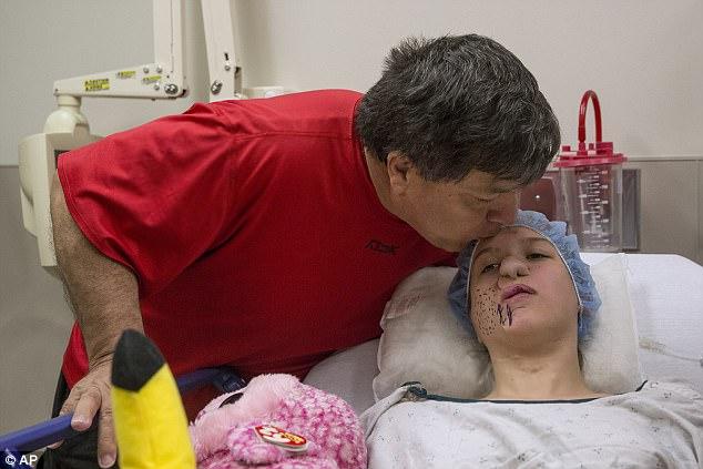 Phẫu thuật khôi phục gương mặt cho cô bé bị gấu trúc cào nát mặt cách đây 14 năm  5