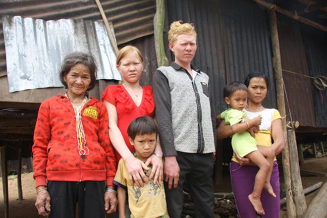 Kỳ lạ chị em người Ca Dong ở Quảng Nam bị xua đuổi, nhà chồng chì chiết vì giống hệt Tây 3