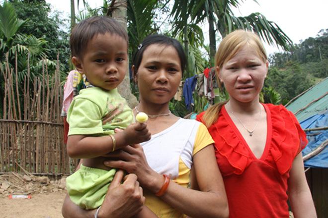 Kỳ lạ chị em người Ca Dong ở Quảng Nam bị xua đuổi, nhà chồng chì chiết vì giống hệt Tây 5