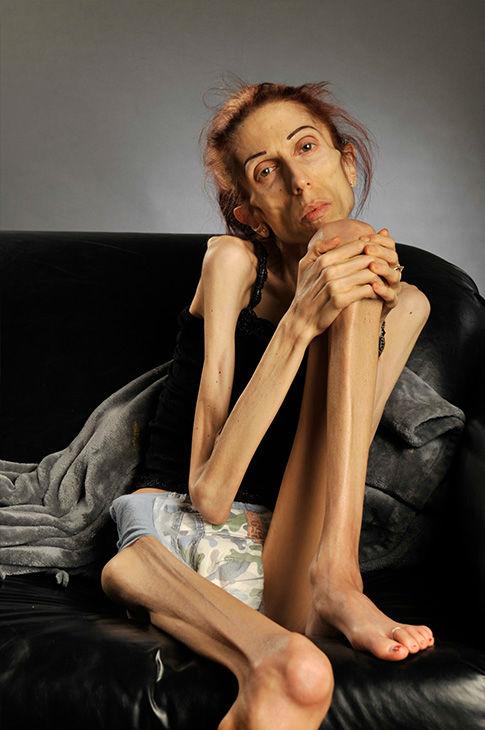 Hình ảnh Nữ diễn viên chỉ còn da bọc xương, nhờ cư dân mạng giúp đỡ và điều kỳ diệu đã đến số 1