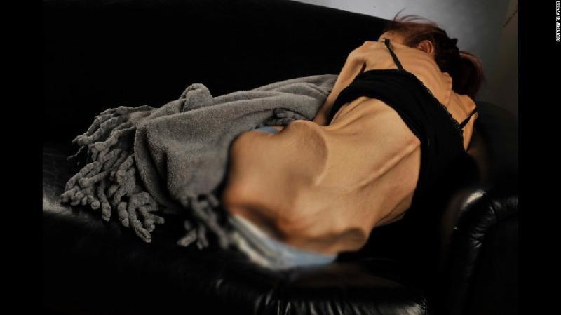 Hình ảnh Nữ diễn viên chỉ còn da bọc xương, nhờ cư dân mạng giúp đỡ và điều kỳ diệu đã đến số 2