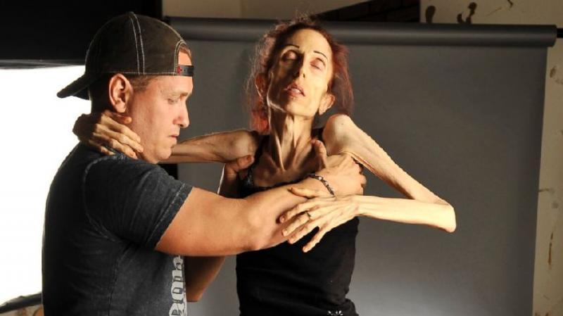 Nữ diễn viên chỉ còn da bọc xương, nhờ cư dân mạng giúp đỡ và điều kỳ diệu đã đến 3