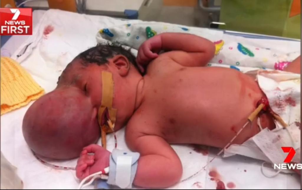Thai nhi bị 'não mọc ngoài hộp sọ', cặp đôi vẫn quyết định sinh con bỏ ngoài lời khuyên của bác sĩ và kết quả bất ngờ 1