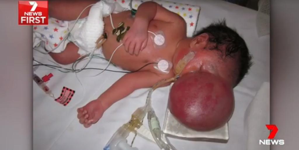 Thai nhi bị 'não mọc ngoài hộp sọ', cặp đôi vẫn quyết định sinh con bỏ ngoài lời khuyên của bác sĩ và kết quả bất ngờ 2
