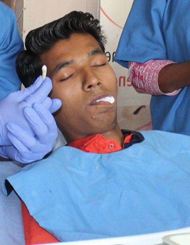 Đến bệnh viện nhổ răng, chàng trai khiến bác sĩ sốc nặng khi lấy ra thứ này 2