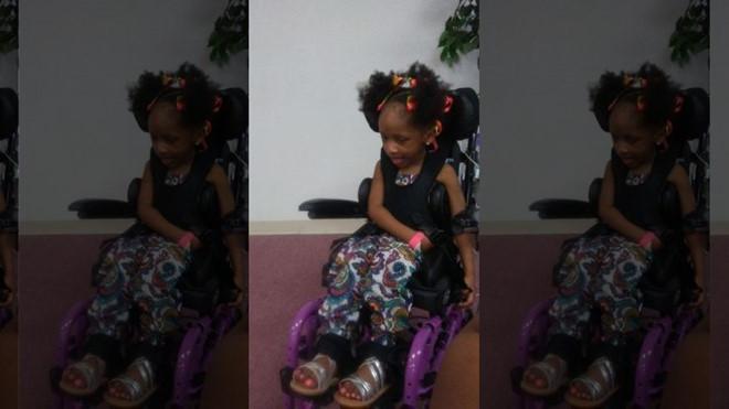 Bé gái 4 tuổi bỗng nhiên phải ngồi xe lăn cả đời vì nhổ răng 1