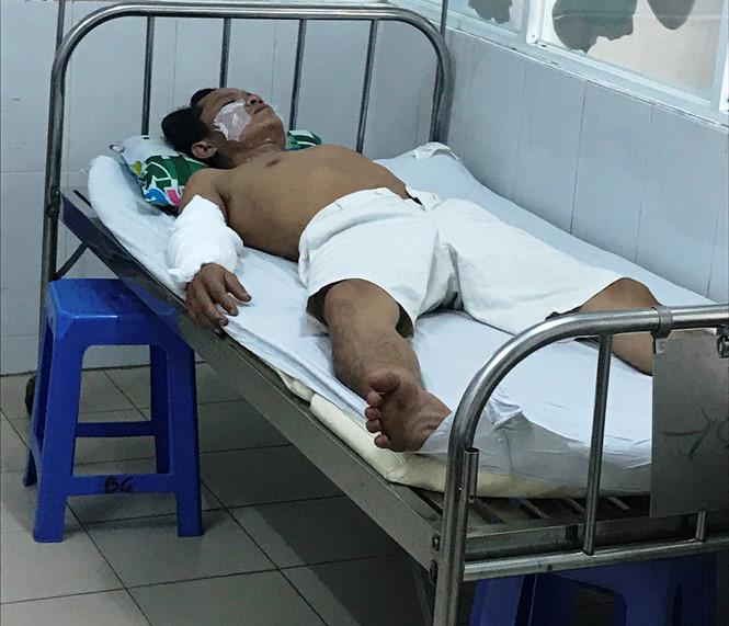 Sau tiếng nổ bất ngờ, 4 công nhân bị bỏng nặng 1