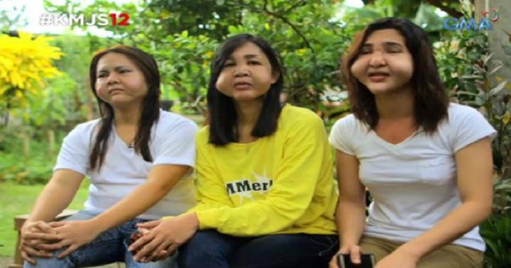 Hình ảnh Khuôn mặt của ba cô gái chuyển giới bị biến dạng vì thẩm mỹ giá rẻ số 1
