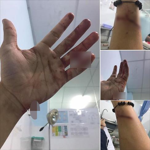 Ca sĩ Đông Hùng bị chém vì mẹ ruột vay lãi tiền tỷ 2