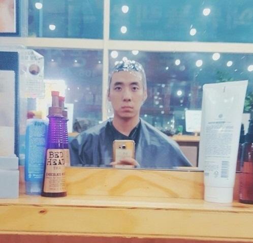 Hình ảnh Nam thanh niên mặt biến dạng vì dị ứng thuốc nhuộm tóc số 1