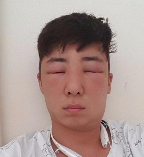 Hình ảnh Nam thanh niên mặt biến dạng vì dị ứng thuốc nhuộm tóc số 4