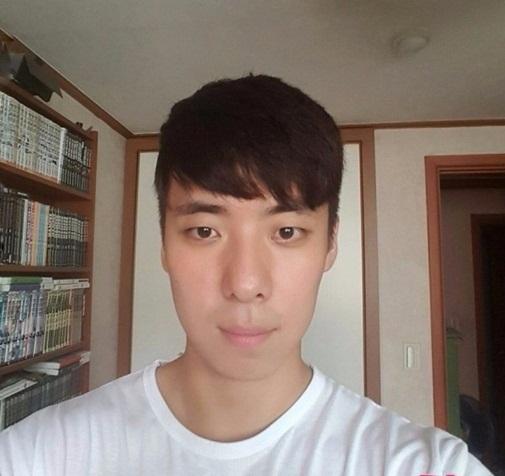 Hình ảnh Nam thanh niên mặt biến dạng vì dị ứng thuốc nhuộm tóc số 5