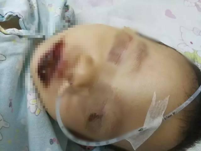 Ăn nhầm gói tẩy lồng máy giặt, bé gái 2 tuổi bị bỏng nặng 1