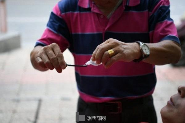 Hình ảnh Kinh hãi sở thích cạo mắt bằng dao lam để làm sáng mắt của người Trung Hoa số 4