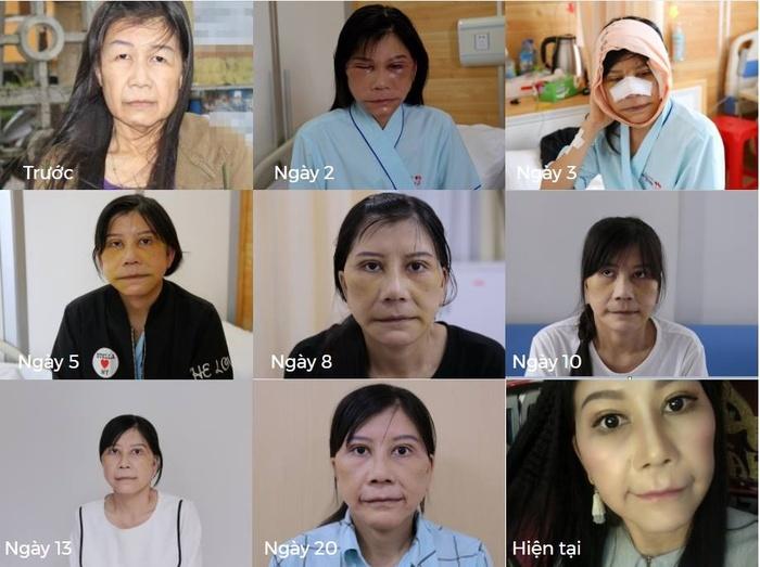 Cô gái 22 tuổi bị lão hóa như cụ bà 80 lột xác nhờ phẫu thuật thẩm mỹ 1