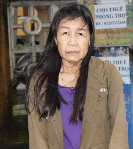 Cô gái 22 tuổi bị lão hóa như cụ bà 80 lột xác nhờ phẫu thuật thẩm mỹ 2
