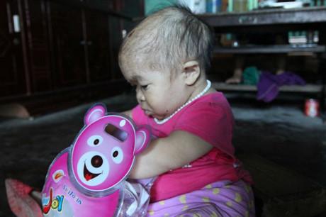 Người phụ nữ 27 tuổi mang bệnh lạ, sống trong thân hình bé gái 2 tuổi 6