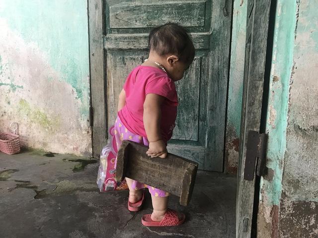 Người phụ nữ 27 tuổi mang bệnh lạ, sống trong thân hình bé gái 2 tuổi 5