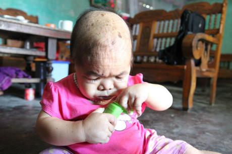 Người phụ nữ 27 tuổi mang bệnh lạ, sống trong thân hình bé gái 2 tuổi 4