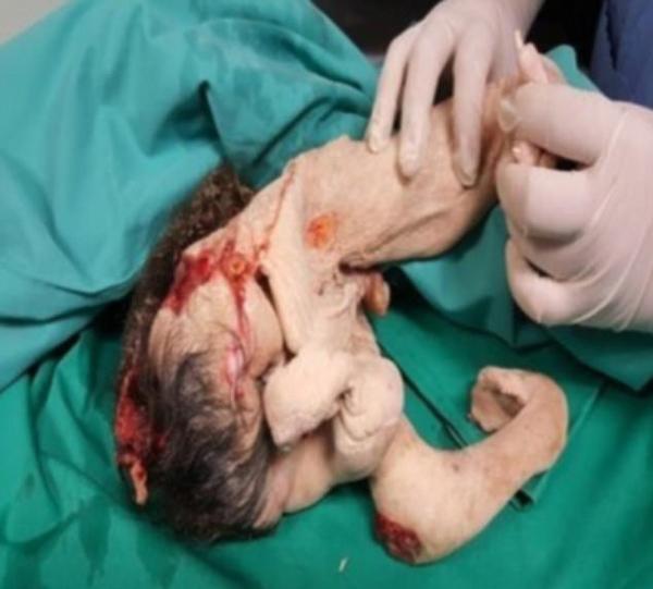 Hình ảnh Bác sĩ bất ngờ khi phát hiện bào thai song sinh trong bụng cậu bé 15 tuổi số 2