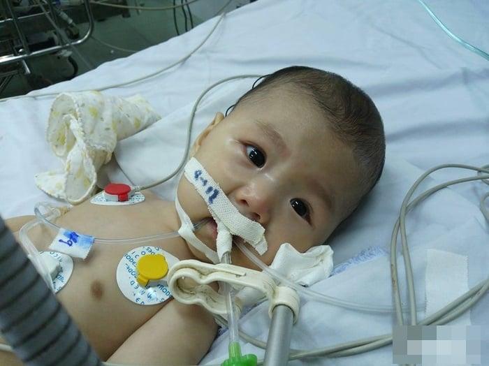 Xót xa em bé 5 tháng tuổi không thể sống quá 2 tuổi vì bệnh hiếm gặp 1