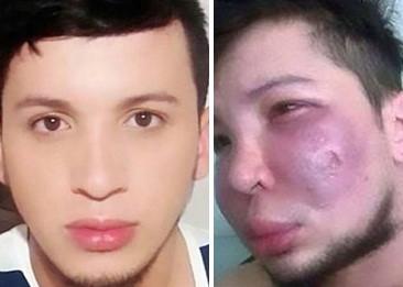 Hình ảnh Chàng trai 28 tuổi bị biến dạng mặt vì độn má số 1