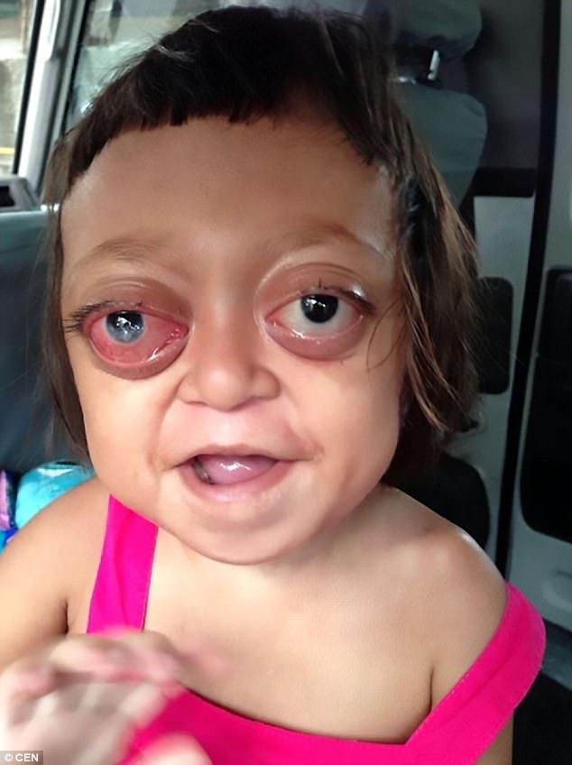Hình ảnh Mắc bệnh hiếm gặp, bé gái bị mẹ bán cho đám ma cô, ngày ngày chịu đòn để đi ăn xin số 1
