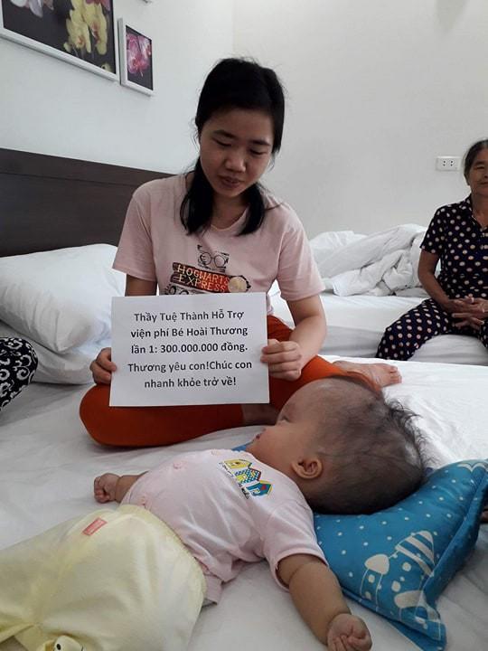 Đã quyên góp được gần 500 triệu đồng chuẩn bị cho ngày mai đưa bé gái