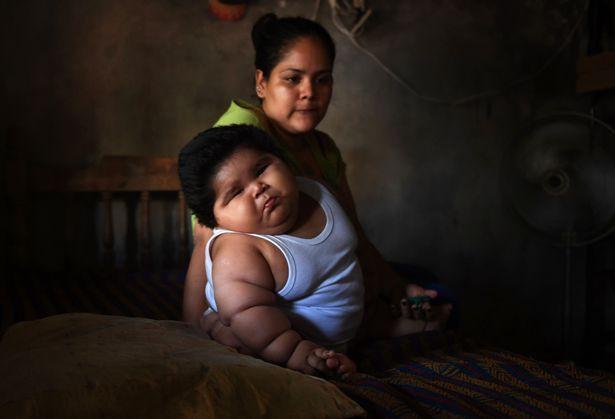 Mắc bệnh đặc biệt khiến cậu bé nặng 28 kg khi mới 10 tháng tuổi 4
