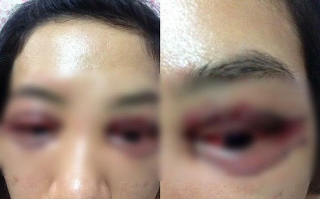 Chủ cửa hàng spa lên tiếng về việc bị tố làm hỏng mí mắt của khách 1