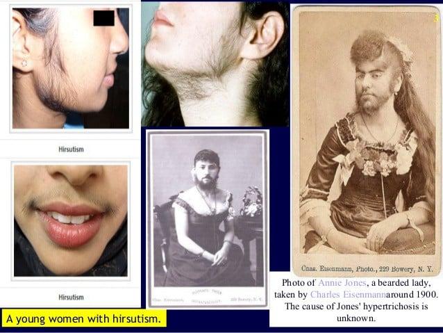 Điều kinh hoàng gì đã khiến nữ giới luôn mịn màng lại
