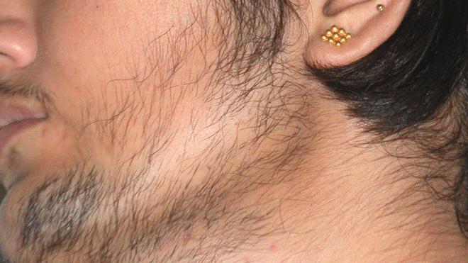 Điều kinh hoàng gì đã khiến nữ giới luôn mịn màng lại lắm lông thế này? - Ảnh 1.