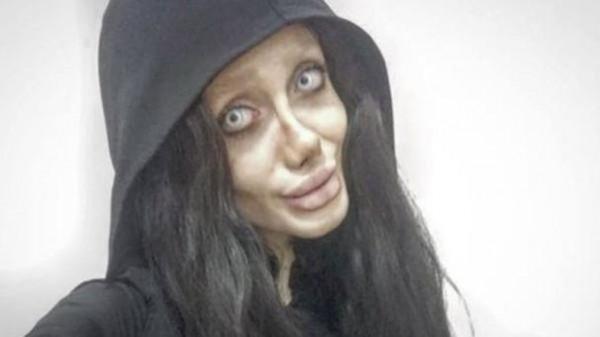 Hình ảnh Cô gái Iran phẫu thuật hơn 50 lần để giống Angelina Jolie nhưng lại hóa cô dâu ma số 1