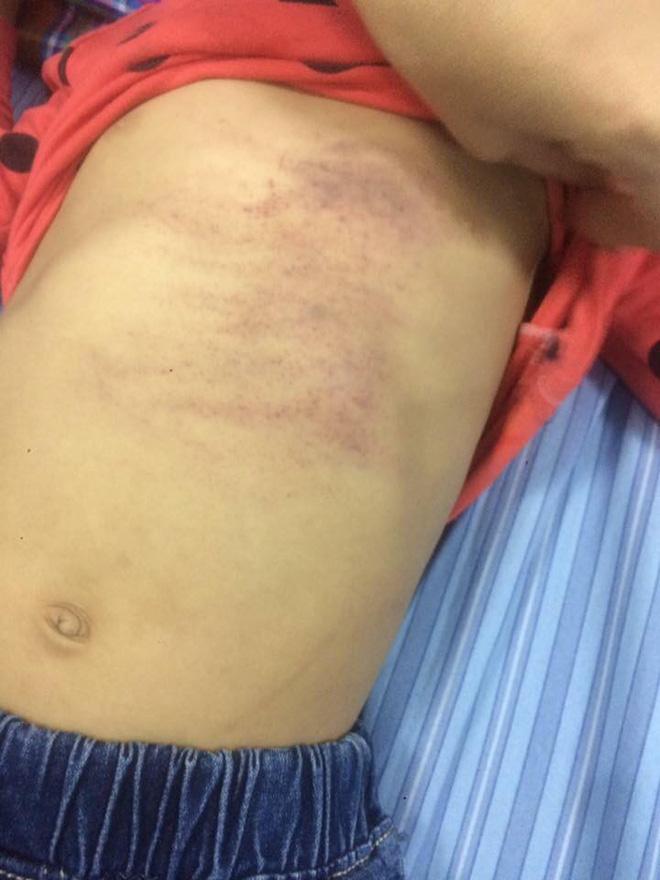 Bé gái 4 tuổi bầm tím toàn thân sau khi đi học về, gia đình nghi bị cô giáo đánh 2