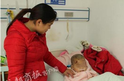 Hình ảnh Chó ngao Tây Tạng tuột xích tấn công bé trai dã man số 1