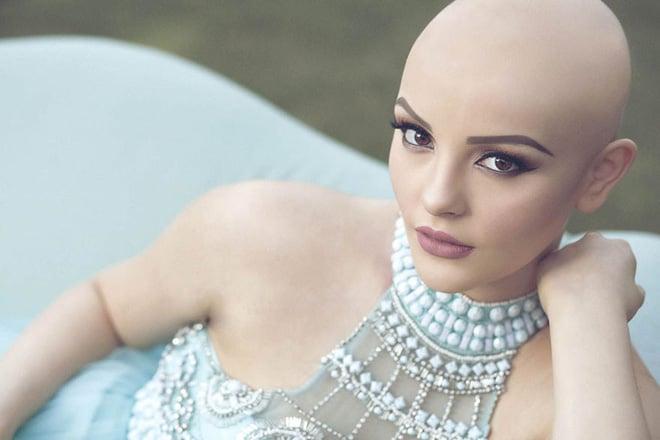 Cô gái 17 tuổi xinh như búp bê cắt trụi tóc để chụp ảnh, biết được sự thật ai cũng nể phục 3